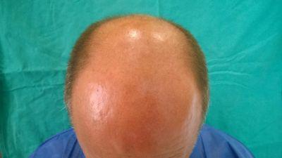 alopecia03-w1024