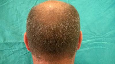 alopecia04-w1024